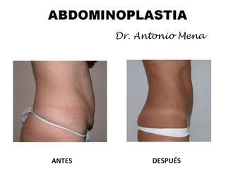 abdominoplastia7