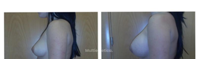 aumento-mamas-foto