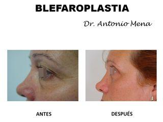 blefaroplastia3