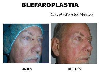 blefaroplastia7