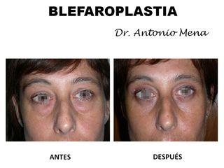blefaroplastia8