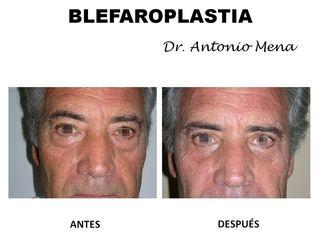 blefaroplastia12_0