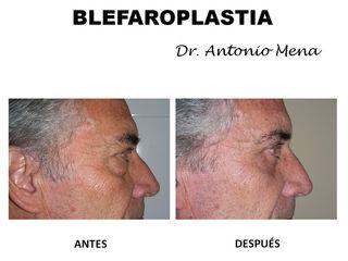 blefaroplastia13_0