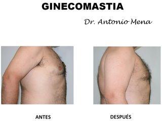 ginecomastia5