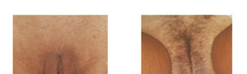 labioplastia1