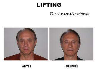 lifting2