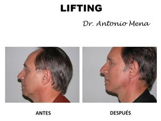 lifting3