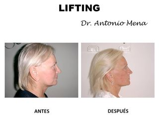 lifting7