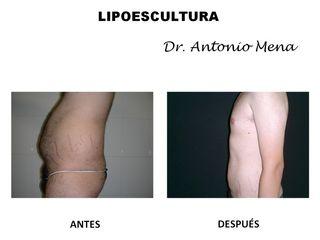 lipoescultura5