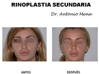 rinoplastia10_0