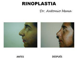 rinoplastia9