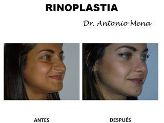 rinoplastia5_0