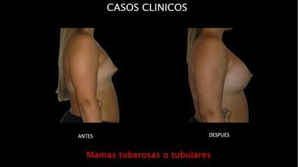 Mamas tuberosas - Contour Clinic