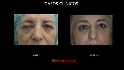 Blefaroplastia - Contour Clinic