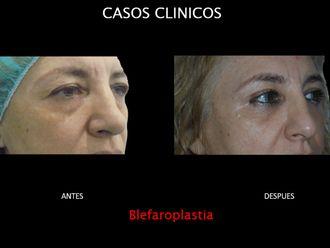 Blefaroplastia-663686