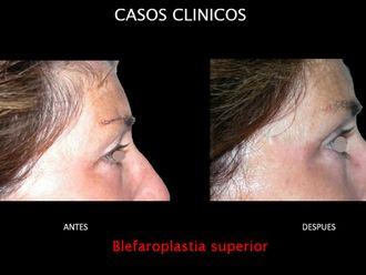 Blefaroplastia-663688