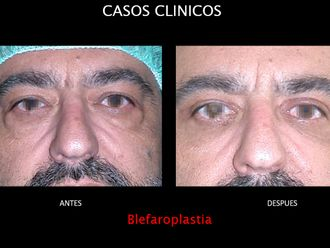 Blefaroplastia-663689