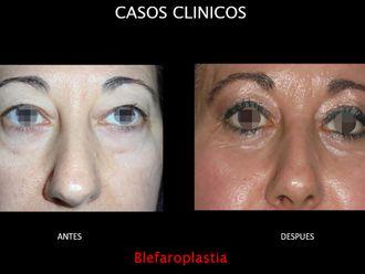 Blefaroplastia-663691