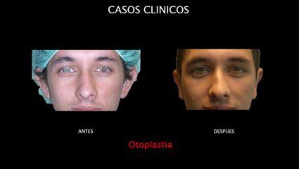 Otoplastia - Contour Clinic