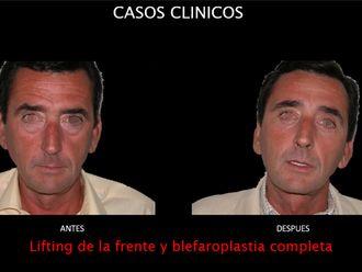 Blefaroplastia-663811