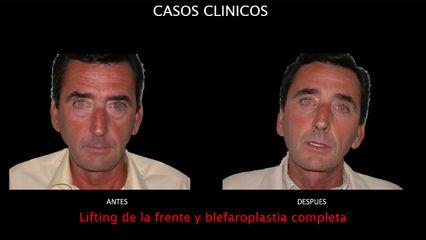 Lifting + Blefaroplastia - Contour Clinic