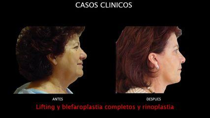 Lifting + Blefaroplastia + Rinoplastia - Contour Clinic