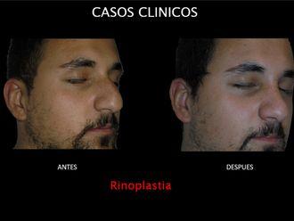 Rinoplastia-663818