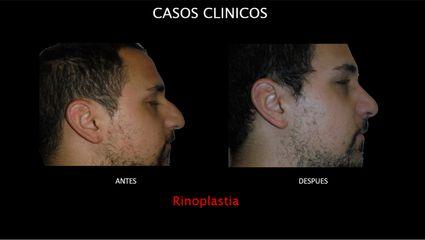 Rinoplastia - Contour Clinic