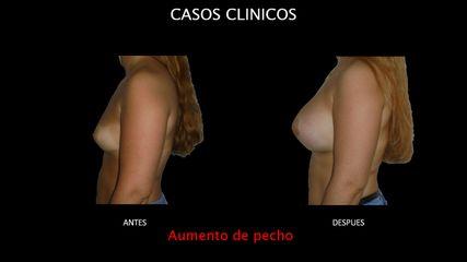 Aumento de pecho - Contour Clinic