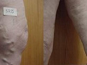 Tratamiento varices-413279