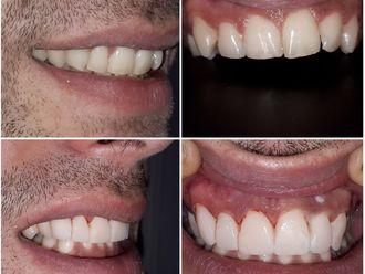 Ortodoncia - 631182