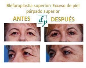 Blefaroplastia - Clínica de estética Dr. del Pino