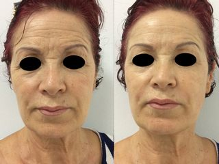 foto antes y después facial