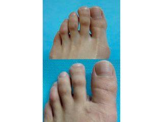 Antes y después Cirugía Estética del pie