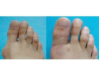 Cirugía reconstructiva - 500726