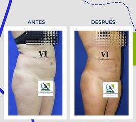Liposucción Centro Clínico Quirúrjico Aranjuez