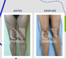 Varices Centro Clínico Quirúrjico Aranjuez