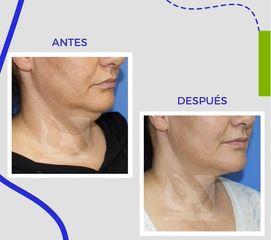 Liposucción papada - Centro Clínico Quirúrgico Aranjuez