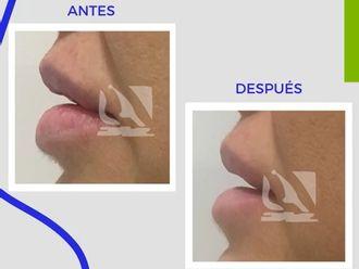 Queiloplastia - 796573