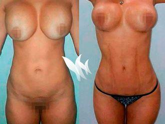 Marcación abdominal - 627886