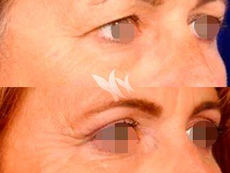 Blefaroplastia-627889
