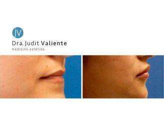 Aumento labios - 642943
