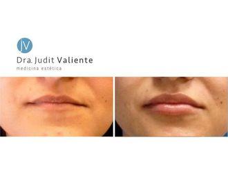 Aumento labios - 642944