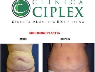 Abdominoplastia-495361