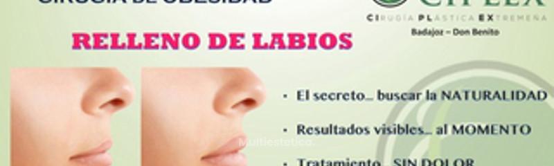 Relleno de Labio - Clínica Ciplex