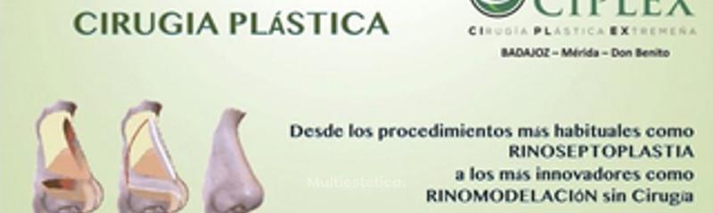 Rinoplastia - Rinomodelación