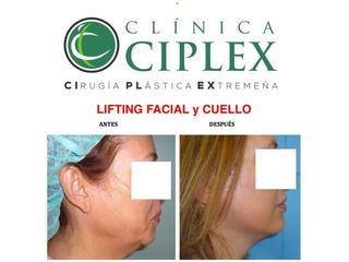 Lifting Facial y Cuello