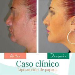 Liposucción de papada - Clínica CIPLEX
