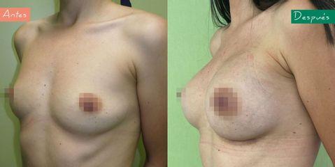 Aumento de pecho - Clínica CIPLEX