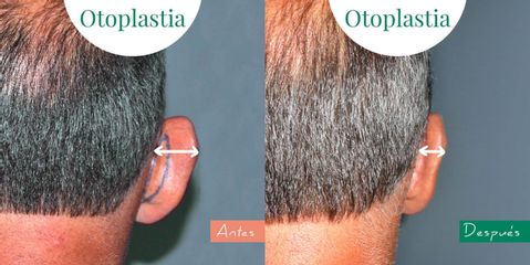 Otoplastia - Clínica CIPLEX